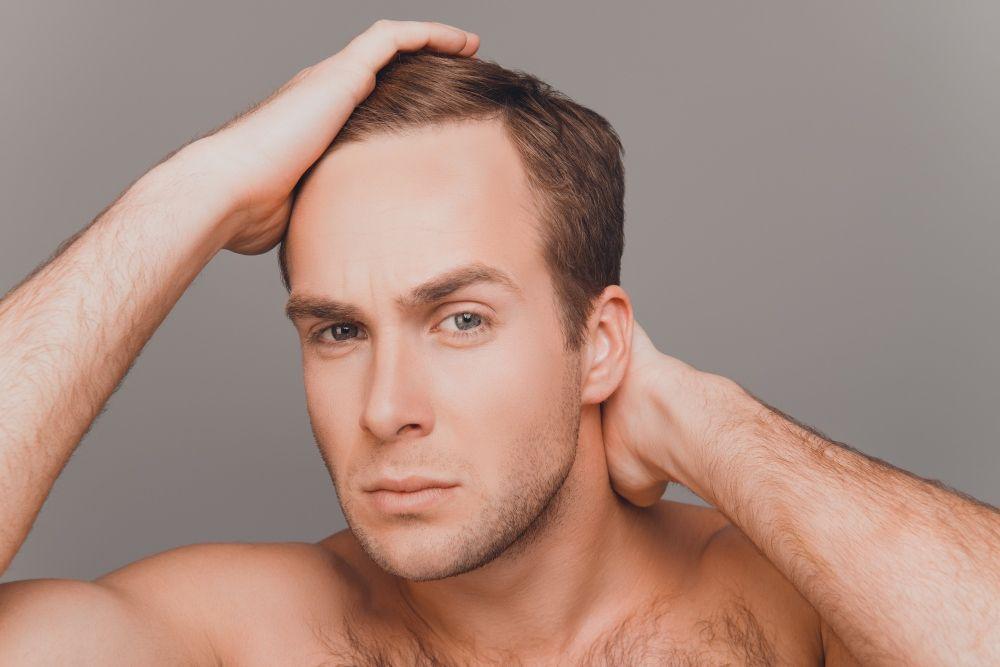 hombre con caída de cabello